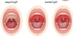 اعراض التهاب اللوزتين عند الكبار
